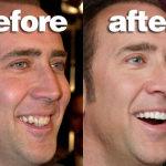 metodos paa un blanqueamiento dental perfecto